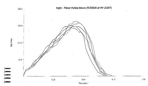Figure-1-Microfet-graph_siz